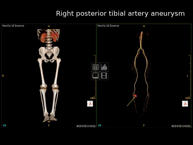 Right Posterior Tibial Artery Aneurysm Neusoft Medical Latinoamrica